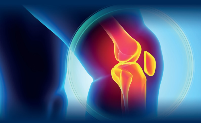 The Act-Flare Study Of Knee Pain